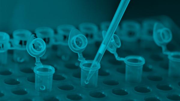 Cómo Comprar Tests de ADN desde Argentina, Uruguay, Chile, etc.